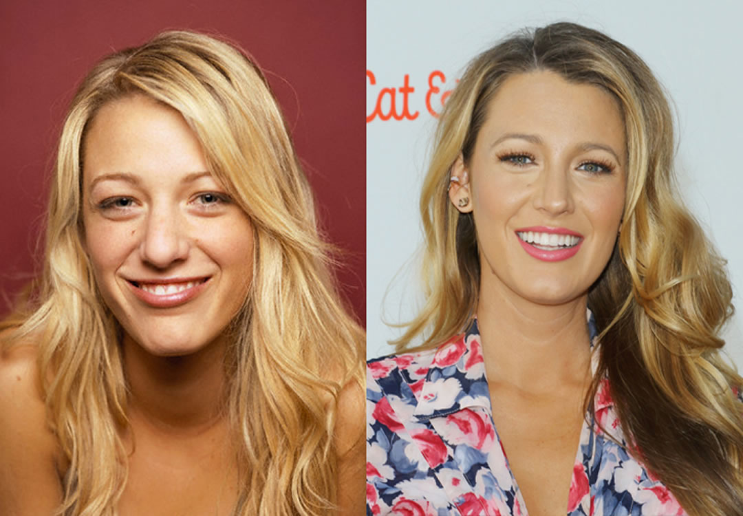 Celebrity Plastic Surgery: 30 Before & After Pics